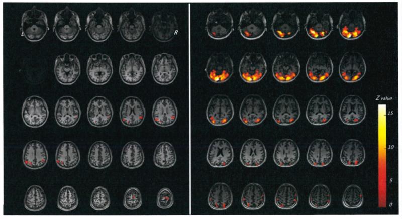 腦部活化分布圖,暗紅色到亮黃色代表腦部活動程度由低到高。圖左是陳員的視覺功能分布區,圖右是對照者的視覺功能分布區。(監察院提供)