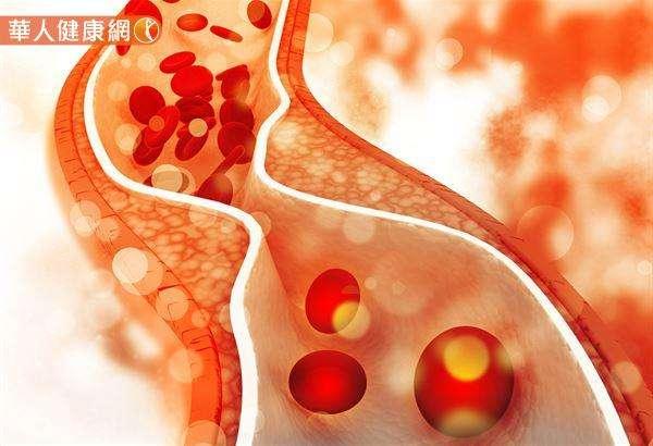 有專家表示,血液中的膽固醇不是心臟病的直接原因,所以每當我們看到總膽固醇或低密度膽固醇LDL-C高時,這時沒必要恐慌,害怕自己有心臟病。(圖/華人健康網提供)