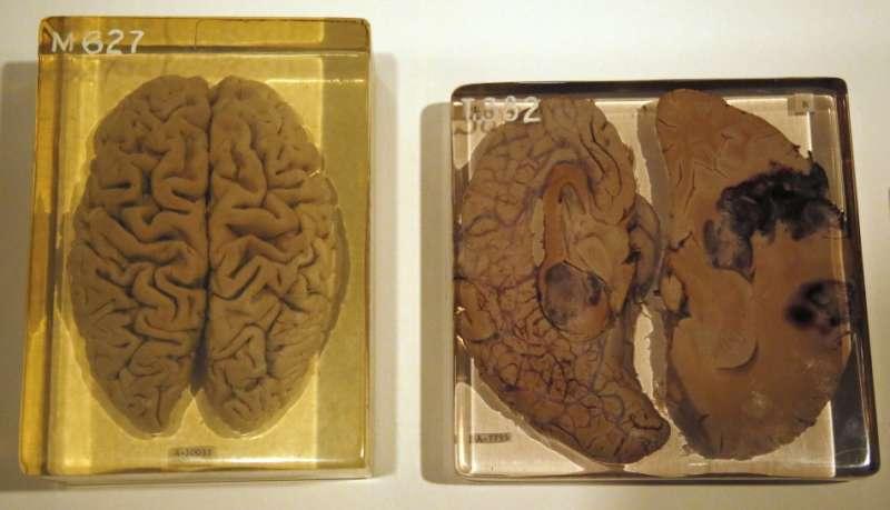 愛因斯坦的大腦。(圖/取自百度百科)