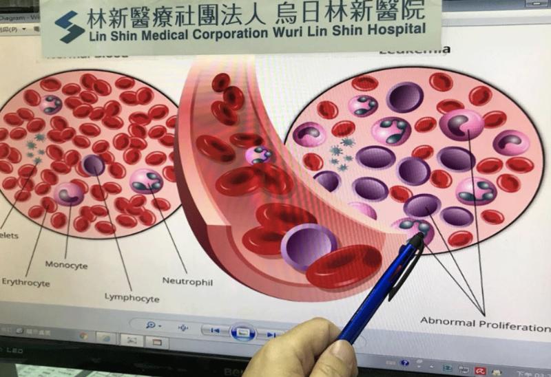 20181227-白血病可依據細胞來源與型態學上的特徵,細分為急性骨髓性白血病、慢性骨髓性白血病,以及急性淋巴性白血病、慢性淋巴性白血病。(圖片提供/烏日林新醫院)