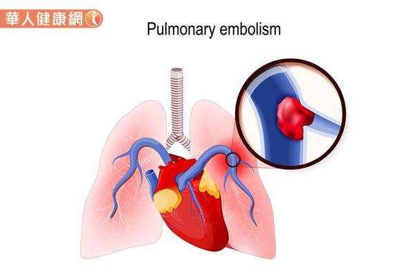 肺栓塞發生的原因,主要與心臟通往肺動脈的血管,突然被血塊、脂肪等組織碎片與空氣阻塞;導致肺臟組織血液灌流不足,造成患者血中含氧量降低,出現低血氧症狀有關。(圖/華人健康網)