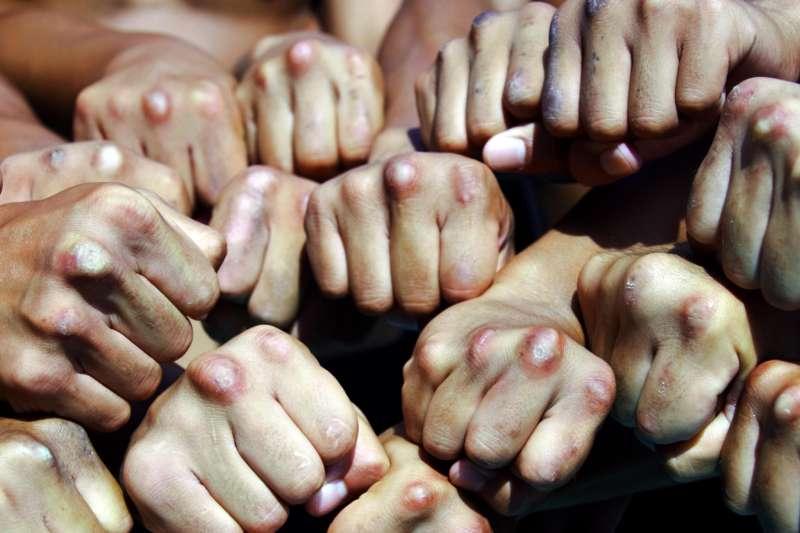 20190130-海軍192艦隊黃國彥少校2018年納編敦睦艦隊期間,拍下陸戰隊莒拳隊員滿是傷痕、甚至結成繭的拳頭,畫面震撼。(取自中華民國海軍臉書)