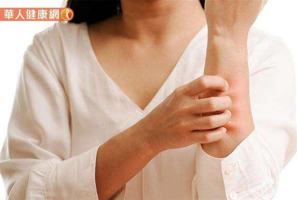 中醫認為因肝臟臟腑失調引起的癢,多屬於全身皮膚搔癢。其成因可能是因為肝硬化、肝炎、肝癌或膽道疾病所引起,當人體內的膽紅素無法順利從肝代謝、沈積在體內就會發生。(圖/華人健康網)