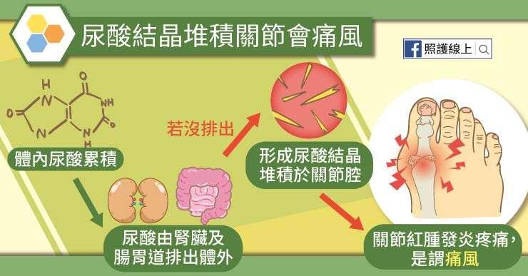 痛風_工作區域 1 複本 2(圖/照護線上)