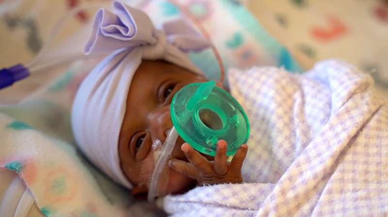 加州女嬰賽比出生時僅245公克重。(AP)