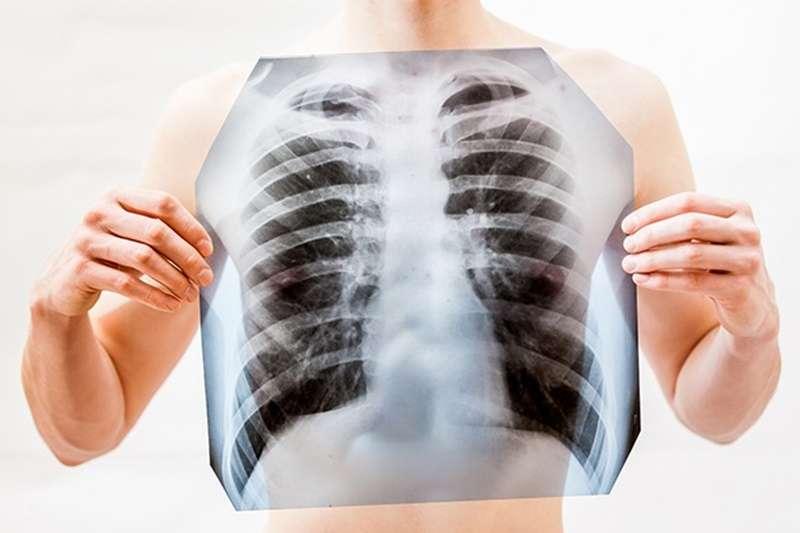 依國際經驗顯示,吸菸率下降20年後肺癌發生率及死亡率才會下降,從吸菸到發生肺癌期間,通常間隔20年以上,且加上台灣人口老化快速,肺癌發生人數也跟著持續上升。(圖/健康傳媒提供)