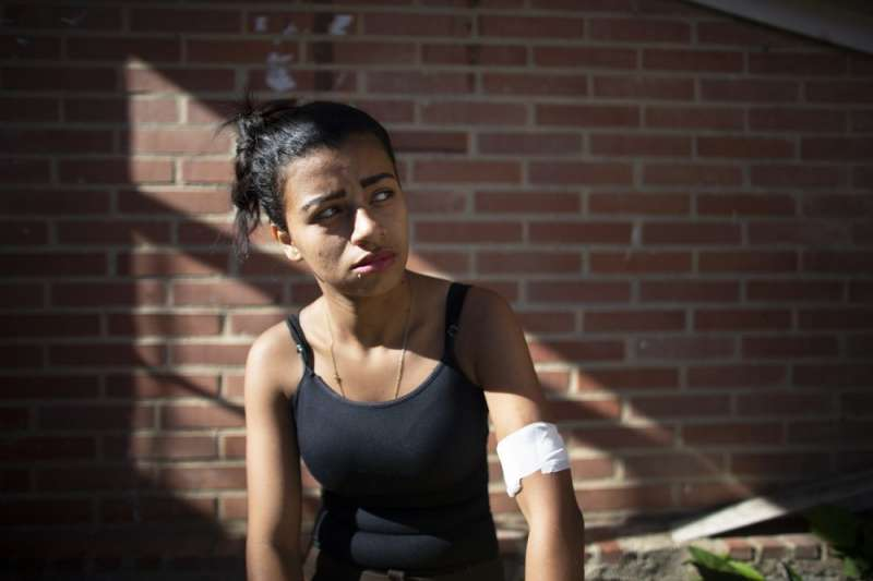 剛植入皮下避孕器的18歲委內瑞拉少女法加杜,她在15歲時生下孩子。(AP)