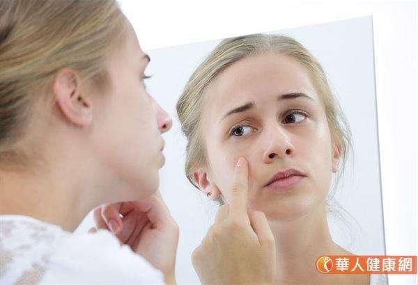 原本清爽的油脂之所以會堵住毛孔,是因為油脂變得黏稠的緣故。(圖/華人健康網提供)