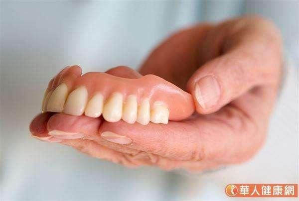 傳統活動假牙大多是利用金屬掛鉤或是磁鐵,讓假牙附在牙床上面。和植牙相比較,製作過程會較單純,所需時間也較短。(圖/華人健康網)