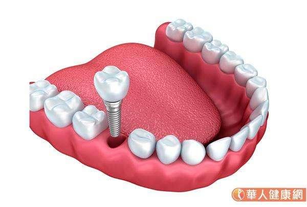 在植牙之前,必須評估該患者是否有嚴重的系統性疾病,若是有做過化療、放射線治療或者其他重大手術的患者,還有心臟病、高血壓、糖尿病的患者,其身體狀況都需要獲得一定的控制才能進行。(圖/華人健康網)