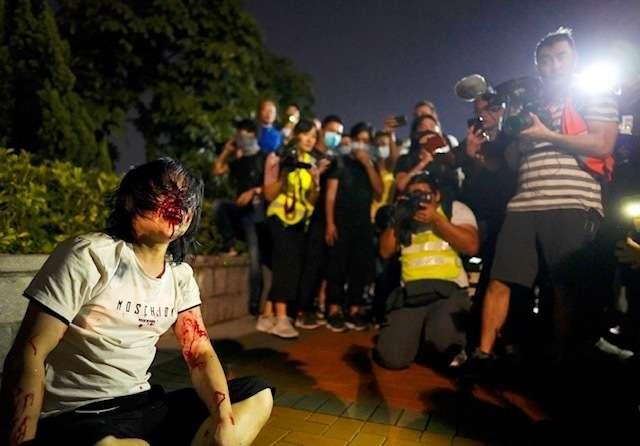 2019年9月,香港「反送中」運動,支持中國民眾遭到毆打(AP)