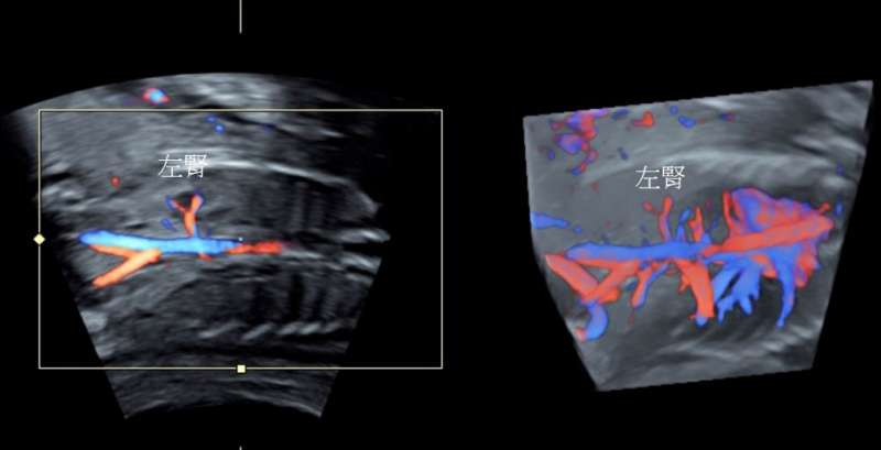 左圖為2D 彩色都卜勒超音波,右圖為3D彩色都卜勒超音波,發現左腎發育不全。(圖/東元綜合醫院提供)