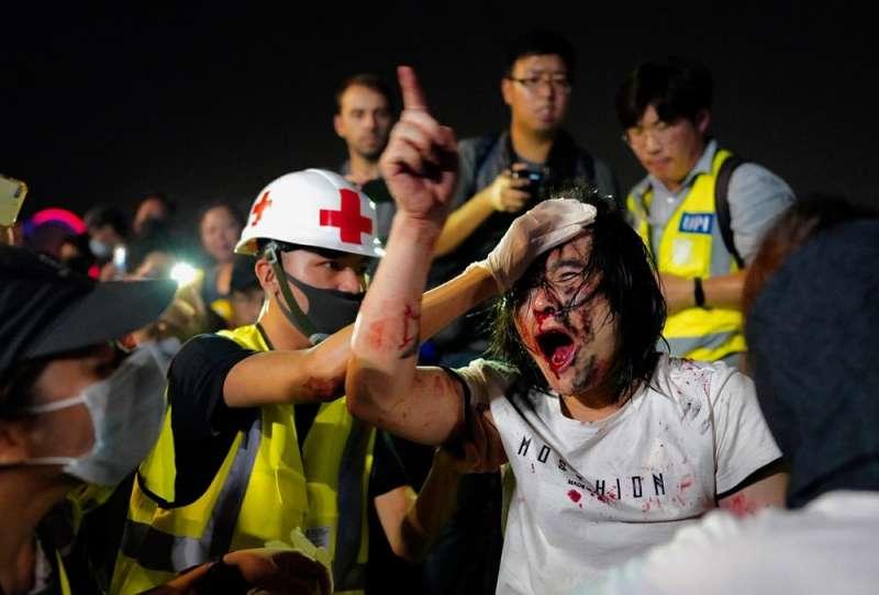 韓麗珠以「業」的觀點看反送中運動過程民眾的流血與傷亡。(AP)