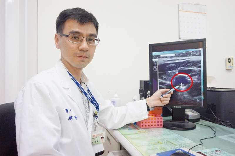 醫師楊敬譽所指紅色圓圈處,為病患頸動脈粥樣硬化性斑塊,如置之不理可能引起缺血性腦中風。(圖/新竹馬偕醫院提供)