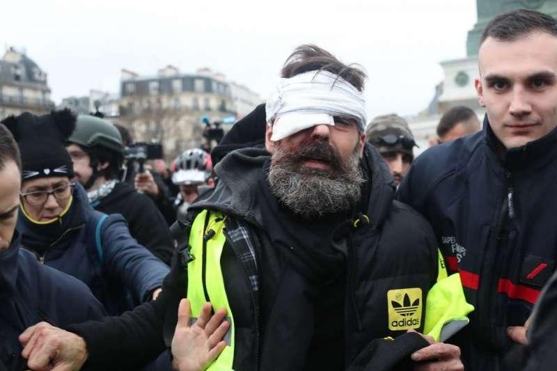 法國黃背心運動中失去右眼的侯德瑞格斯。(AP)