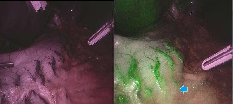 (左)未使用ICG螢光顯影技術時,深部血管較不易辨認;(右)使用ICG螢光顯影技術後,血管在螢光鏡頭下呈現綠色,組織深部的血管也會發出綠色訊號,幫助醫師辨認,減少誤傷血管風險(藍色箭頭)(圖 /醫師蔡明憲提供)