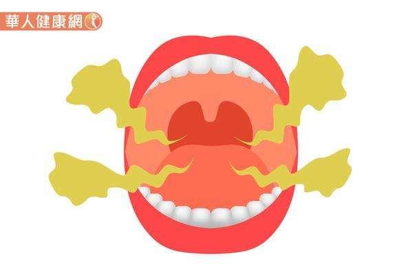 中醫認為,造成口臭的原因有很多,雖然部分成因確實跟體內的火氣、熱象有關,但也有可能是脾虛,或是腎虛體質造成。(圖/華人健康網)