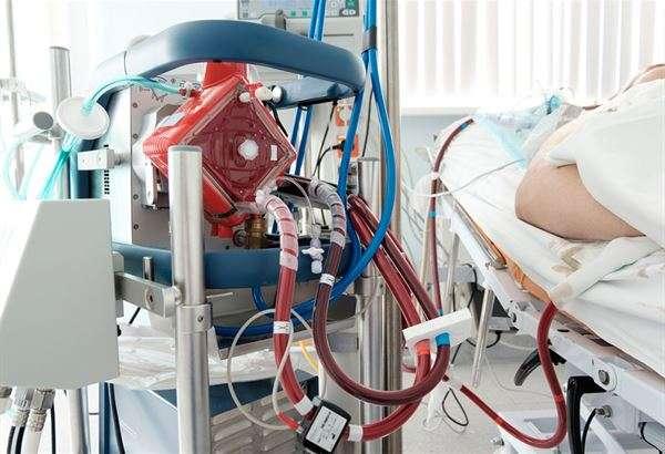儘管裝葉克膜可以減輕患者心肺負擔,為醫療人員爭取更多救治時間。但是,葉克膜也不是無限期的裝下去。(圖/華人健康網)