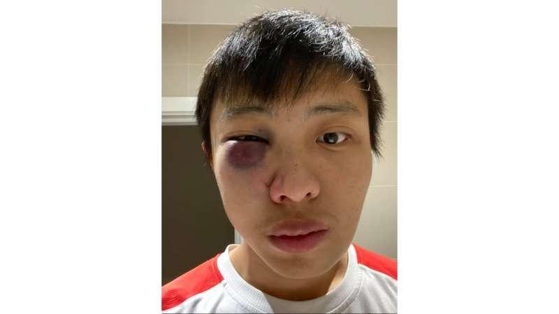 武漢肺炎全球蔓延,對亞裔族群的歧視事件不斷發生,新加坡留學生在英國倫敦街頭遭圍毆(取自Jonathan Mok臉書)