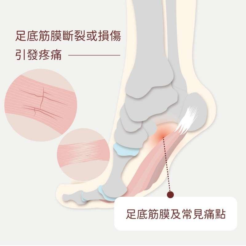 足底筋膜炎常見痛點示意 (圖:群英整形外科診所提供)