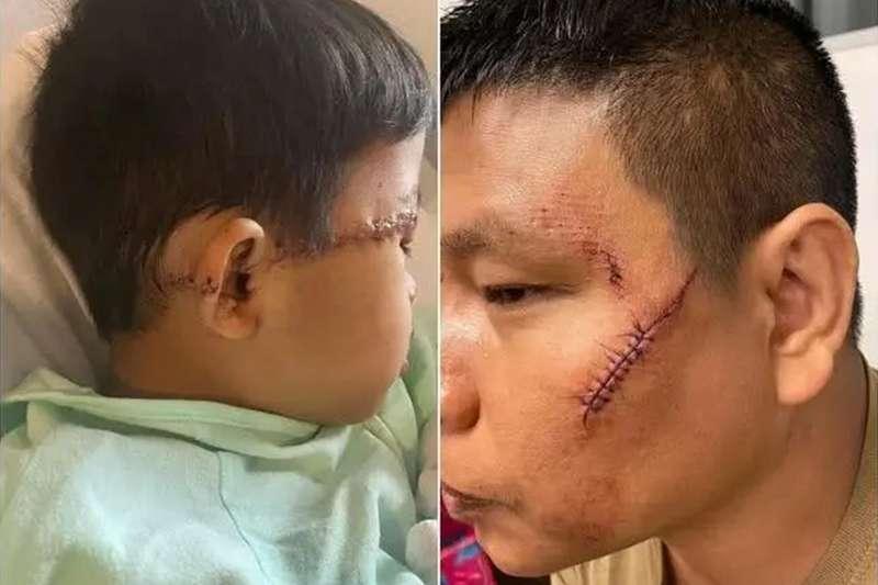 父子在超市被襲擊,傷口皮開肉綻,縫了約數十針。(圖/翻攝自環球時報)