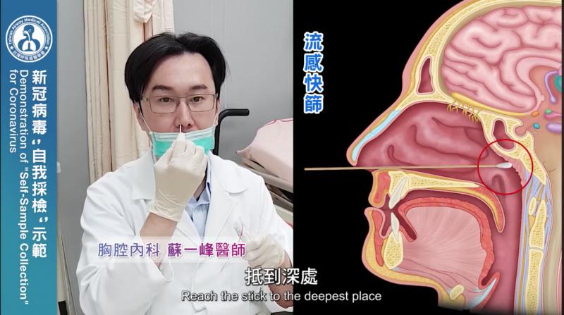 先進行流感快篩,將快篩棒伸進鼻腔最深處再取出。(圖/截自蘇一峰醫師影片)