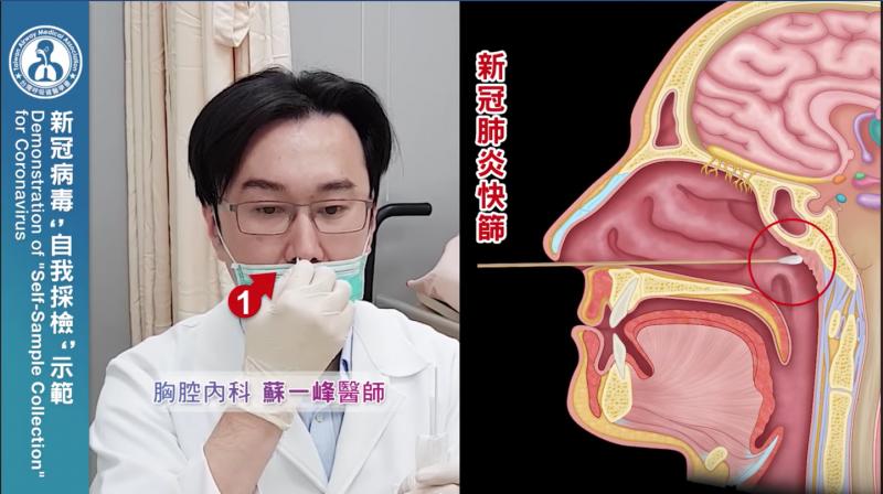 將武漢肺炎的採檢棒同流感快篩伸進鼻腔,一支做一邊鼻孔,一樣要抵到最深處。(圖/截自蘇一峰醫師影片)