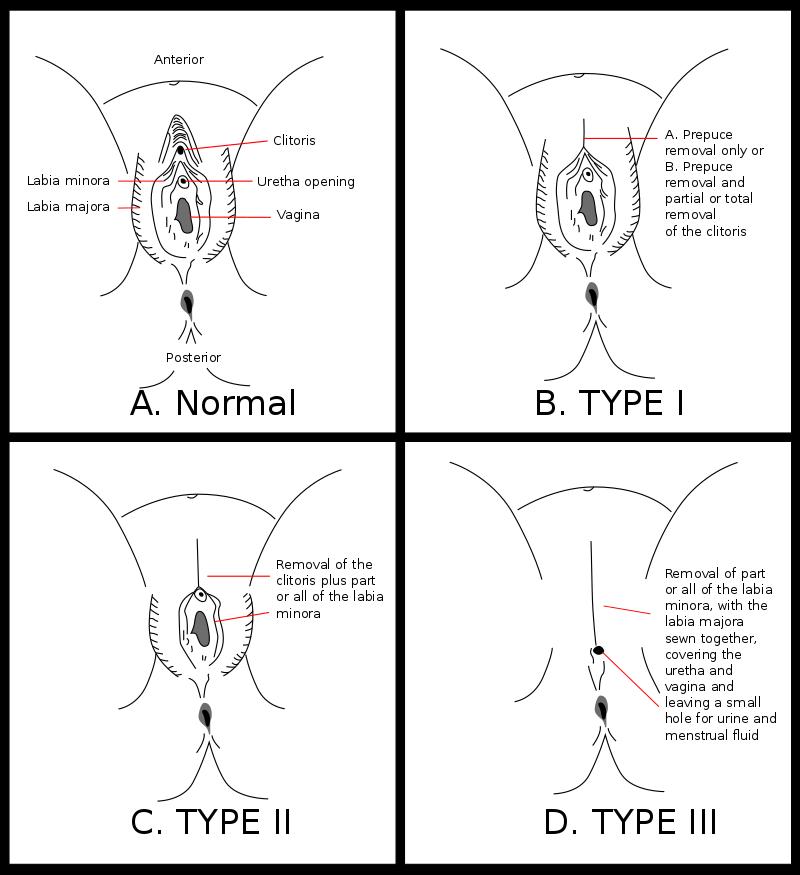女陰殘割(FGM,女性割禮)前後示意圖。(維基百科公有領域)