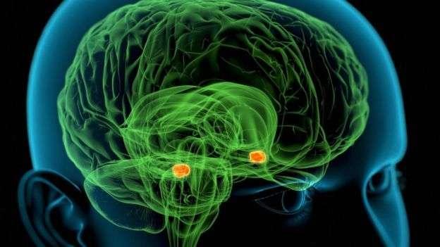 歐美國家過去20多年的失智症患者在減少,特別是男性。(BBC News中文)
