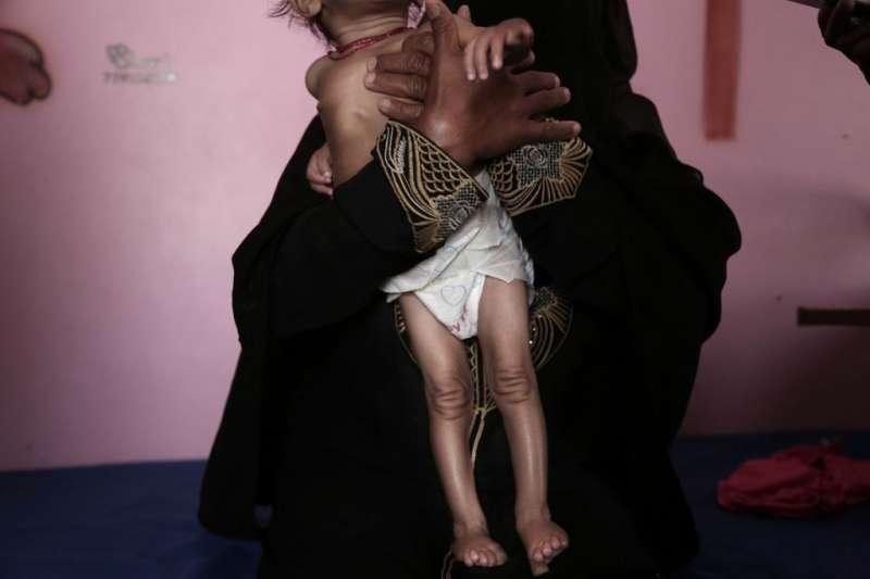 受疫情、內戰影響,葉門營養不良兒童人數上升。(Felton Davis@Flickr/ CC BY 2.0)