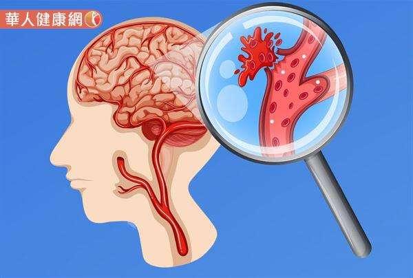 陳龍醫師也提醒,想要有效預防中風發生,民眾年過40歲以後,就應養成每年定期進行全身性健康檢查的習慣。(圖/截自華人健康網)
