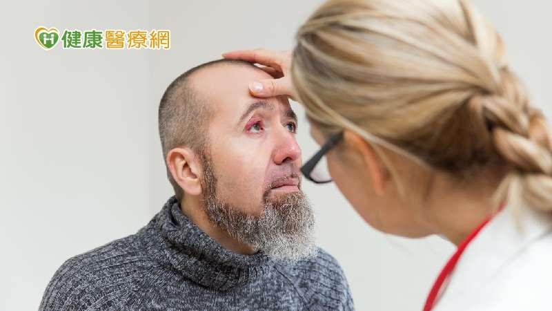針眼的正式學名是「麥粒腫」,是眼皮腺體發炎化膿所造成,若腺體阻塞後沒有發炎化膿的腫塊,則稱為「霰粒腫」。(圖/健康醫療網)