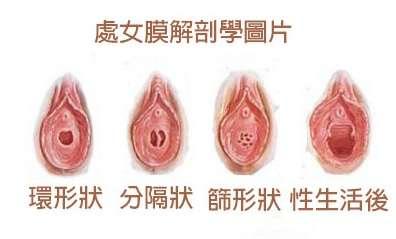 處女膜 处女膜破时会有声音吗处女膜破了会有声音么