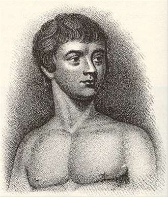 1799年,有人在法國南部森林裡找到一個與世隔絕、從未暴露在語言裡的年輕人,稱為「阿韋龍的野孩子」。(翻攝自維基百科)