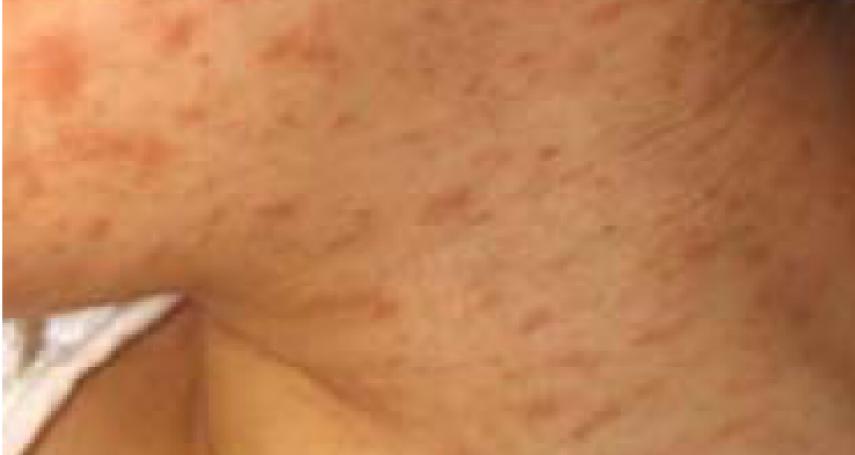 別搶打麻疹疫苗 醫師:20年沒人重症死亡