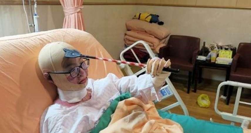 八仙塵爆三周年》她燒傷後「全家都讀護理系」一場災難,讓遍體鱗傷的女孩得到無微不至愛