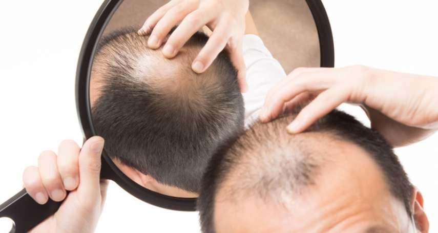 禿頭解方找到了?原來起雞皮疙瘩,可以刺激細胞、加速頭髮再生!