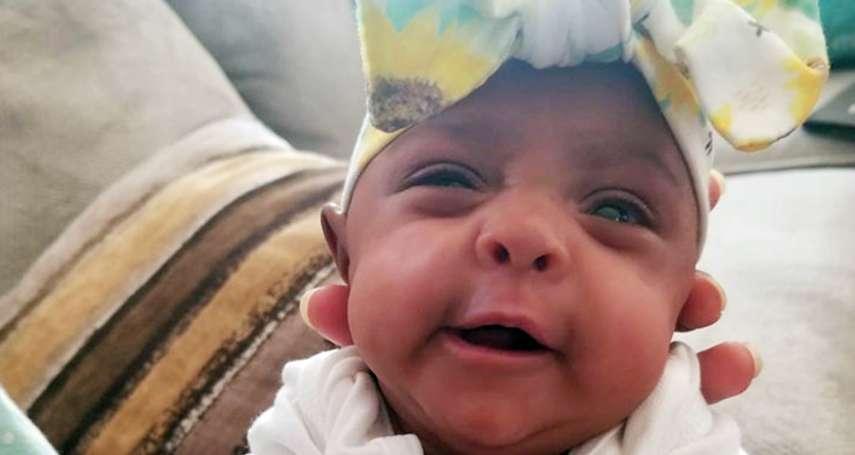 拇指仙童》出生體重245公克僅相當於1個蘋果,全世界最袖珍的新生兒健康出院!