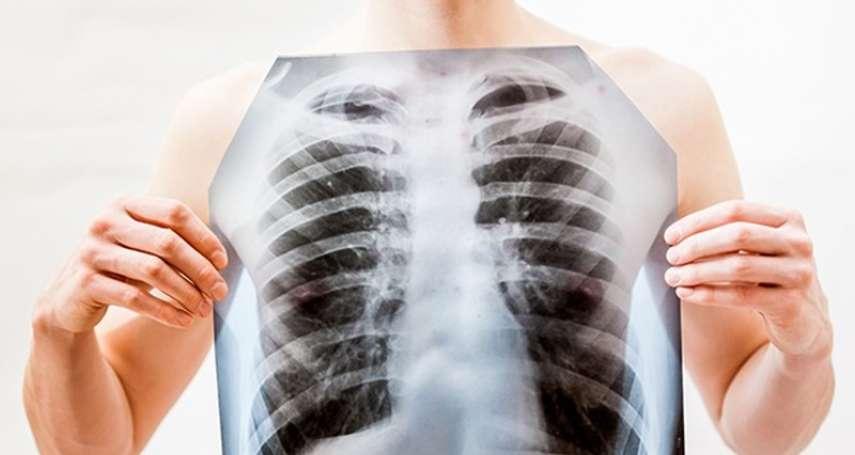 病死或窮死,你能選嗎?「台灣新國病」肺癌,為何1個月藥錢高達15萬?