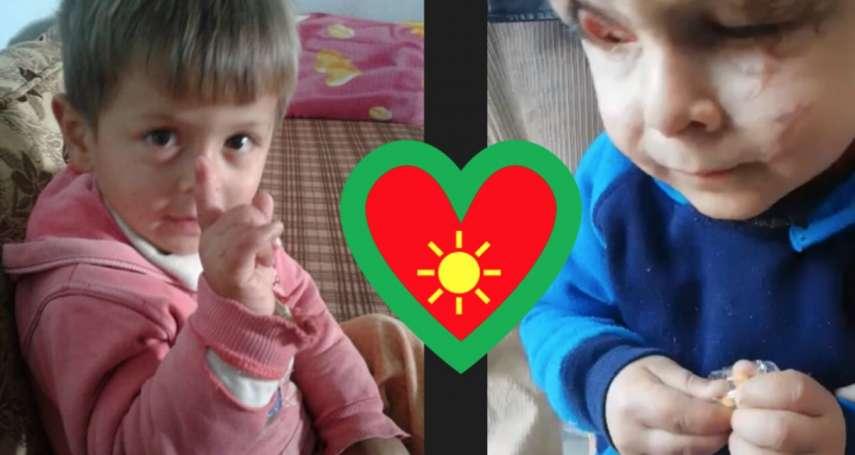敘利亞戰火的無辜受害者:在逃難時遭砲火擊中,雙目失明、嚴重毀容的小約瑪