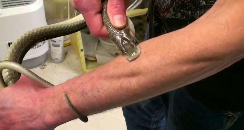 美國男子「獻身」讓毒蛇咬數百次 忍痛尋找萬能抗毒血清