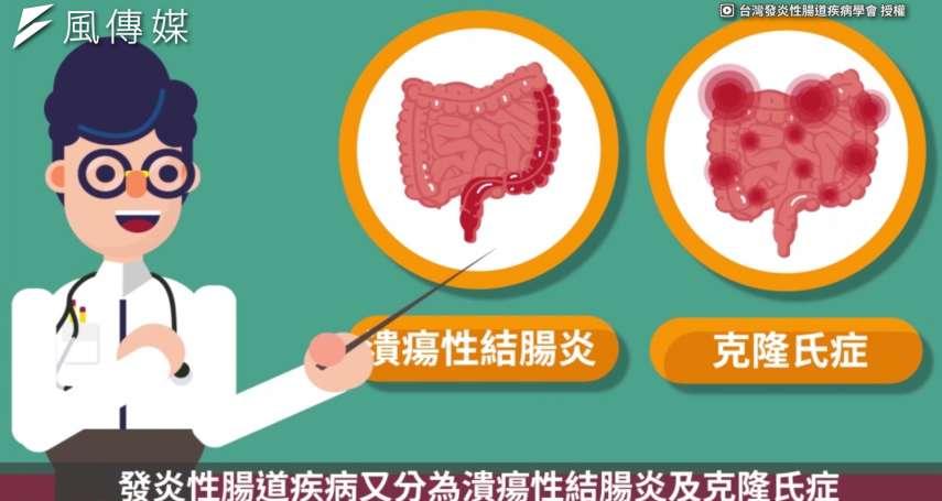 小狀況不理成大病,注意你有以下症狀嗎?當心..恐是發炎性腸道疾病!