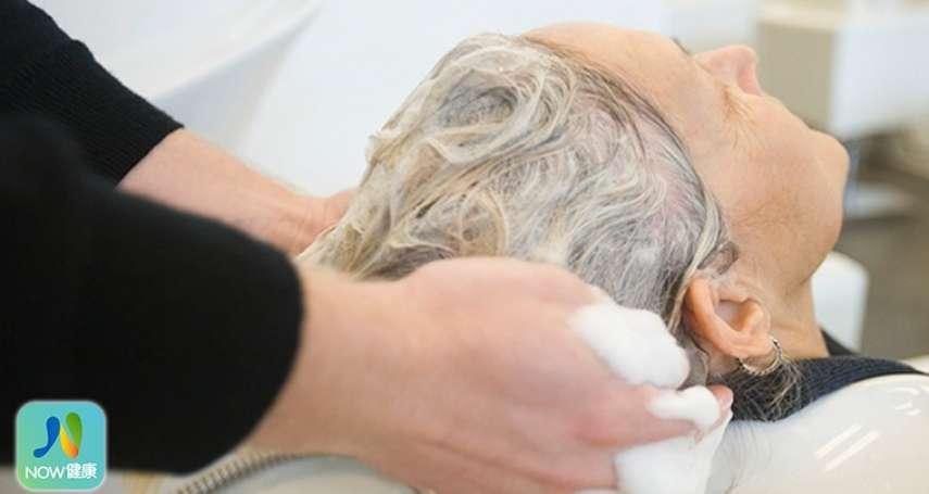 禿頭都是含矽靈洗髮精害的?皮膚科醫師:不如勤洗安全帽內襯