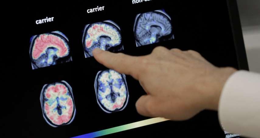 挽回失去的記憶》失智症治療現曙光?藥廠測試「阿茲海默氏症解藥」取得重大進展,將向FDA申請批准上市!