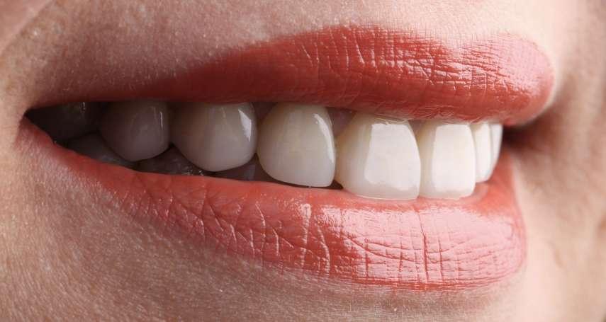 美白牙齒別亂貼!張箭球:「『陶瓷貼片』是牙齒美學最後一哩路」