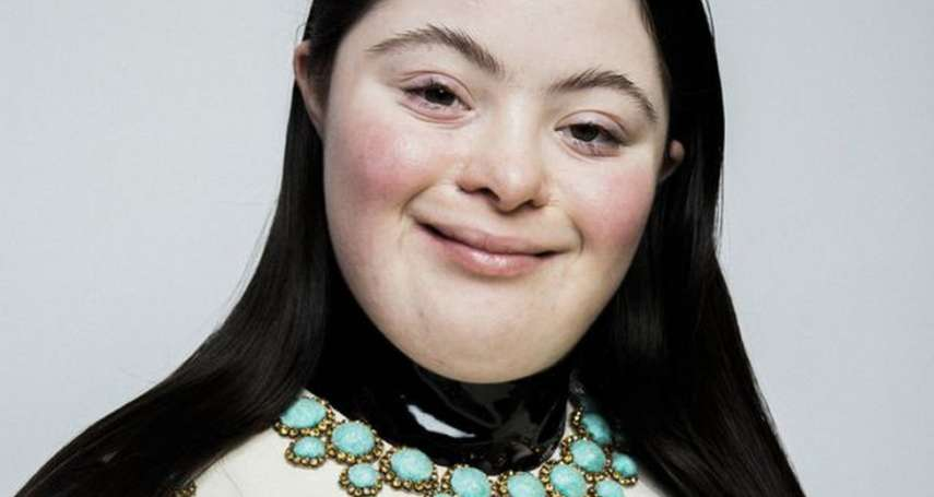 「多出來的那條染色體,也無法阻攔她!」《Vogue》第一位唐氏症模特兒:艾麗‧高斯坦