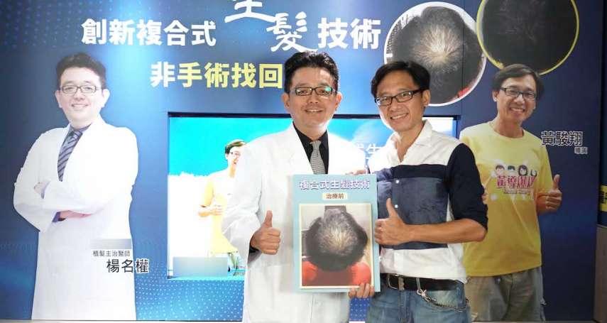 複合式療程 知名導演積極治療成功救髪