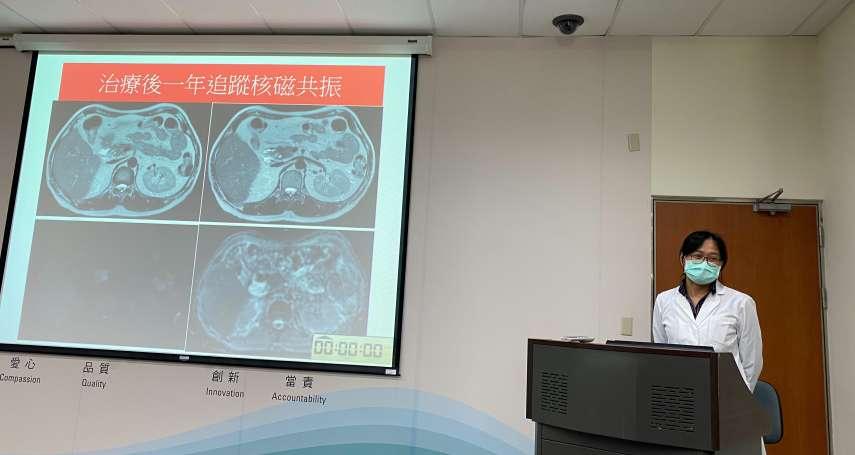 內視鏡超音波檢查 找出疑似腫瘤的自體免疫性胰臟炎