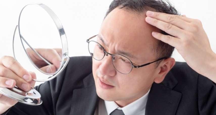 壓力大頭髮狂掉怎麼辦?醫生揭禿頭的4大關鍵,守住髮際線一點也不難
