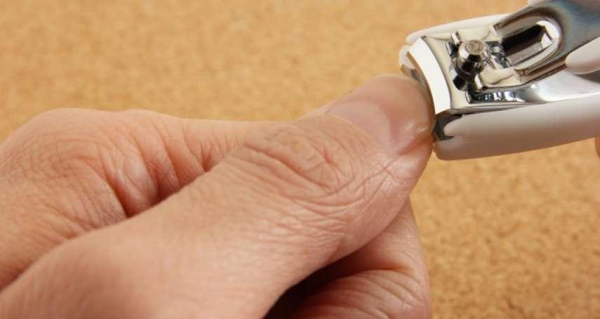 指甲邊緣冒「肉刺」超想拔掉?醫師教你2步驟輕鬆清除,千萬別再手癢硬撕它